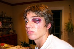 young man with a shiner